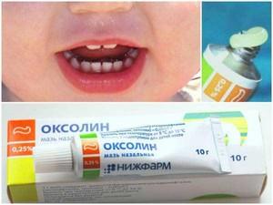 Препараты для лечения простуды в носу