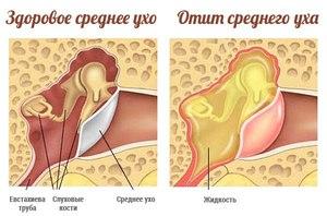 Острый отит среднего уха