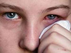 Аденовирусная инфекция глаз