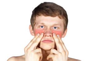 Симптомы гнойного гайморита