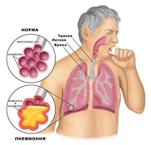 Почему не проходит долго сухой кашель