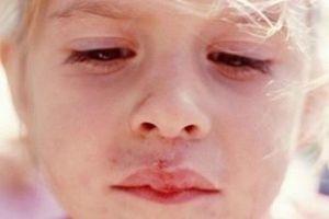 Как лечить герпес на губах у детей